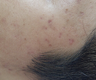 image/catalog/lumive/device1/clinical-acne-after.jpg
