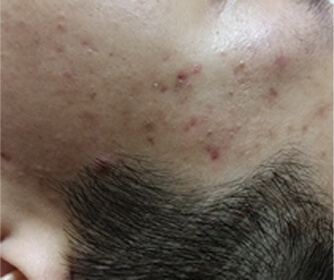 image/catalog/lumive/device1/clinical-acne-before.jpg