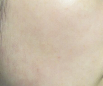 image/catalog/lumive/device1/clinical-skin-after.jpg