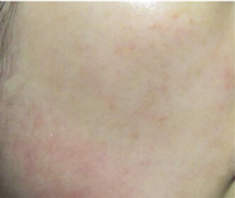 image/catalog/lumive/device1/clinical-skin-before.jpg
